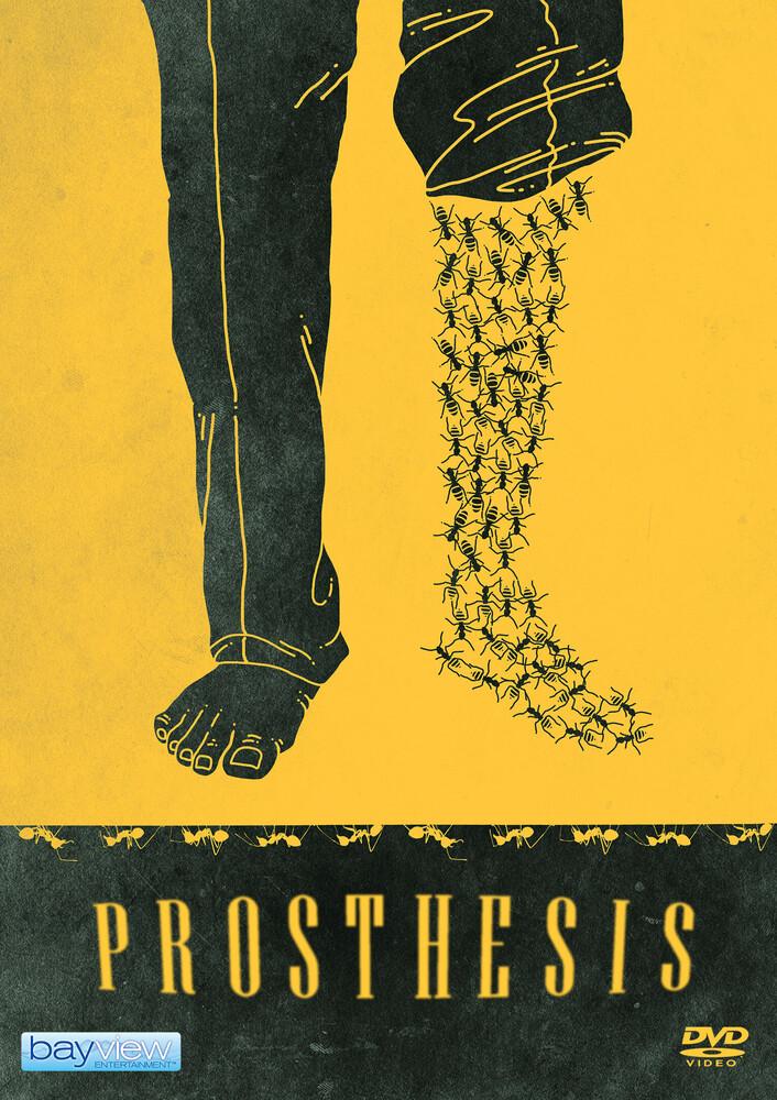 Prosthesis - Prosthesis