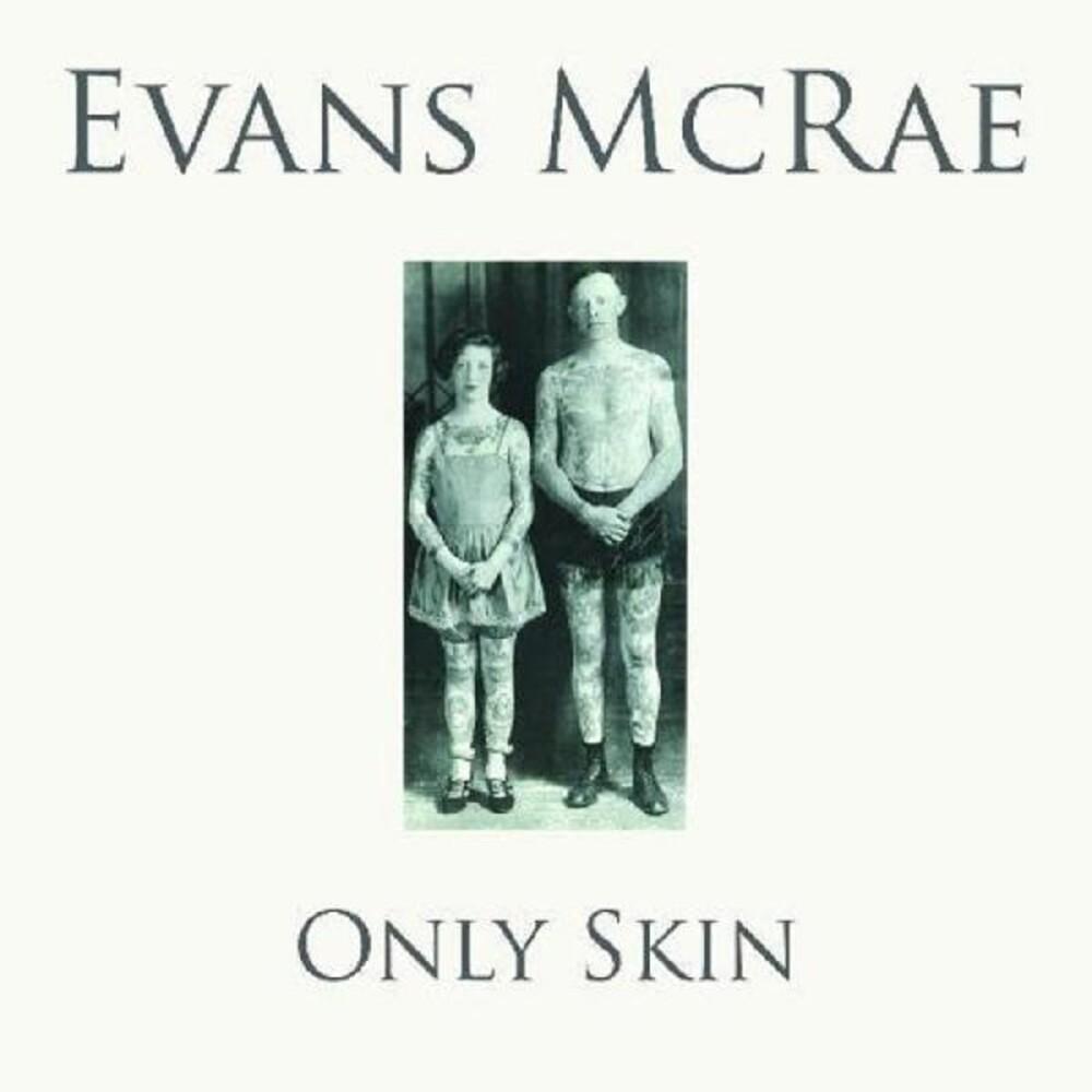 Evans Mcrae - Only Skin (Uk)