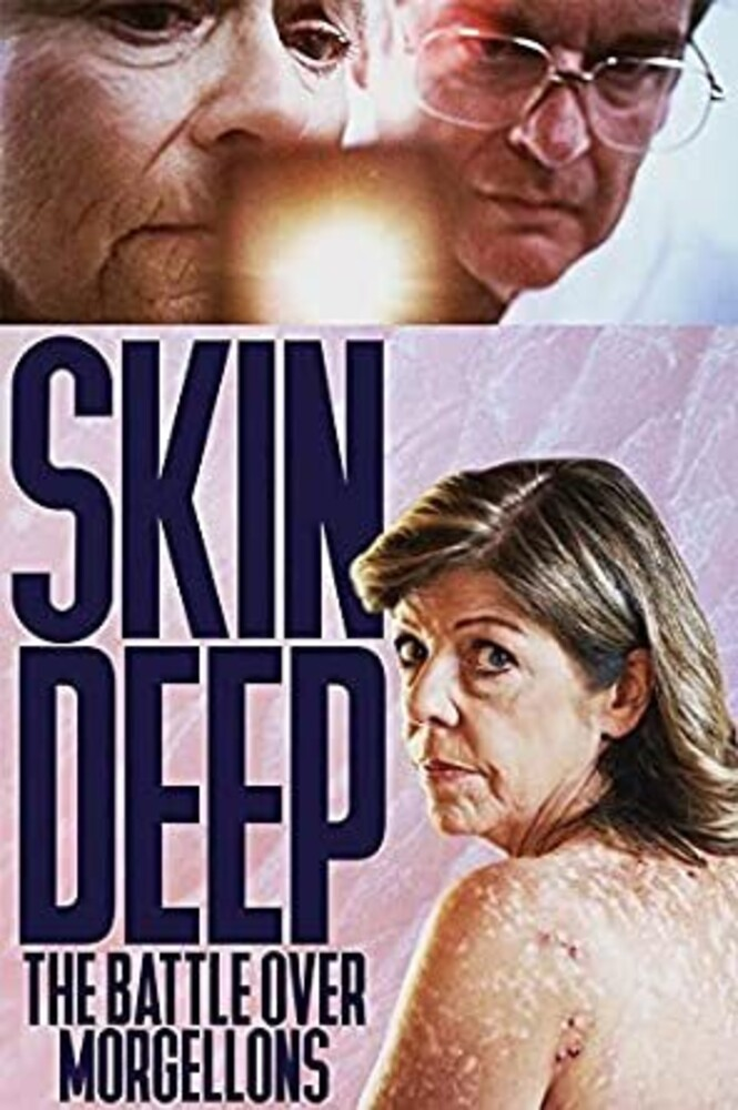- Skin Deep: The Battle Over Morgellons / (Mod)